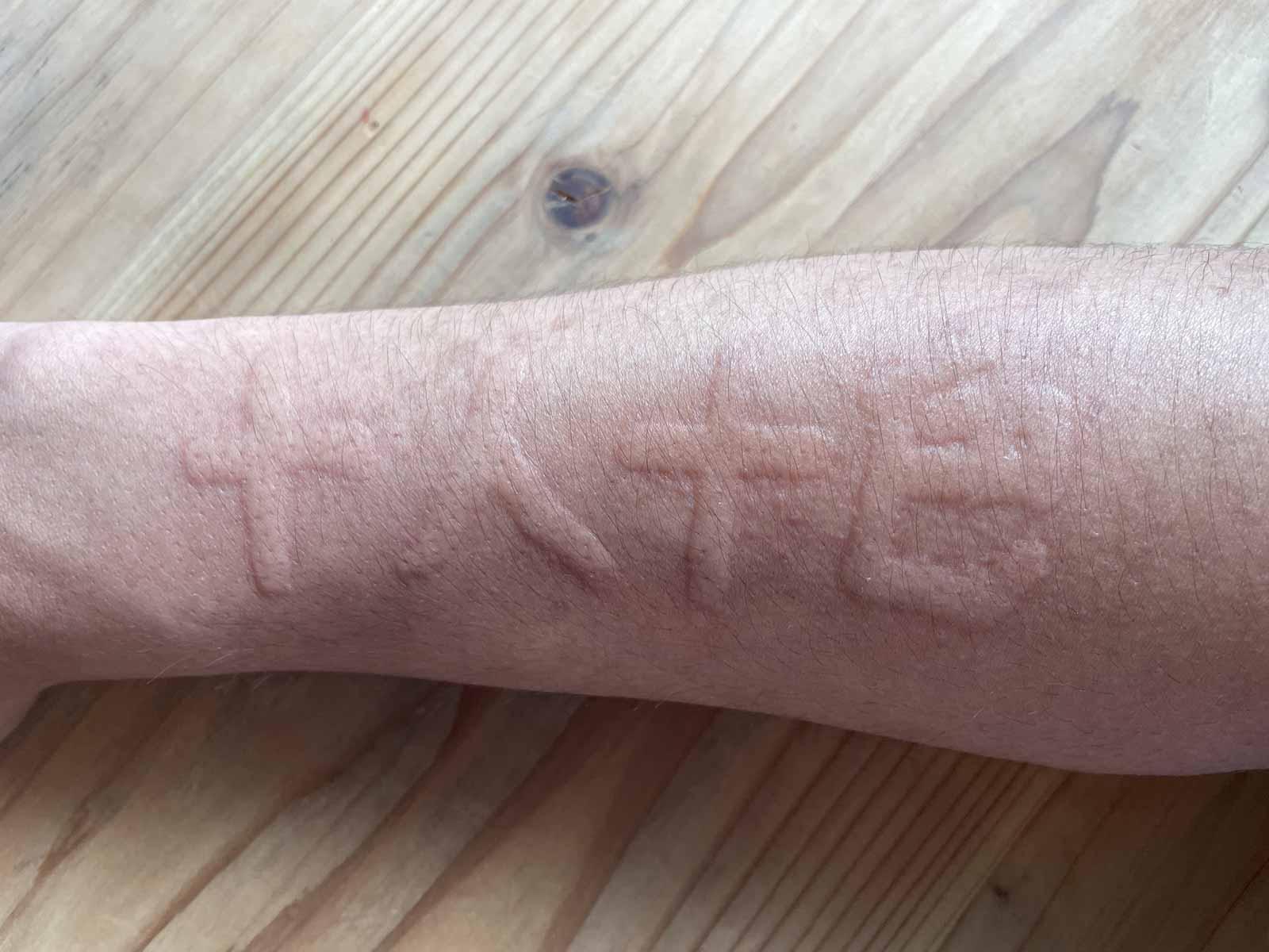 皮膚描画症の肌に「十人十色」と書いてみた